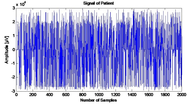 EEG signal AD patient