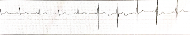 ECG_Printout_of_a_heart_failure_patient_with_CCM_therapy