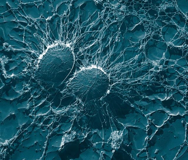 staphylococcus_aureus_50000x_usda_ars_emu.jpg